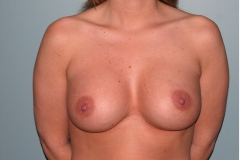 Silicone Breast Implants 425cc